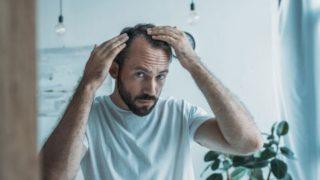髪の悩み全般